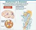 Alzheimer's disease - Gene Boosts Memory