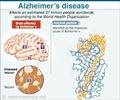 Infographics on Alzheimer's disease - Gene Boosts Memory