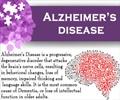 Infographics on Alzheimer's disease