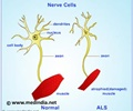 Infographics on Amyotrophic Lateral Sclerosis