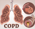 Infographics on Chronic Obstructive Pulmonary Disease