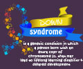 Infographics on Down Syndrome