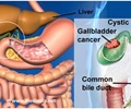 Infographics on Gallbladder Cancer