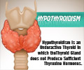 Infographics on Hypothyroidism