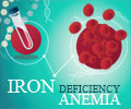 Infographics on Iron Deficiency Anemia