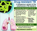 Infographics on Multi-drug Resistant Tuberculosis (MDR-TB)