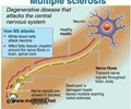 Multiple Sclerosis - New Drug