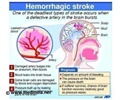 Stroke - Mortality Rate
