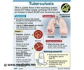 Tuberculosis - Test Kit