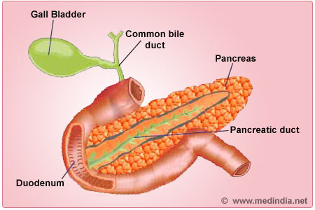 Pancreatitis - Infographic