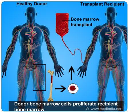 stem cell transplant procedure pdf