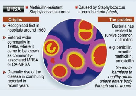 MRSA Infection - Infographic