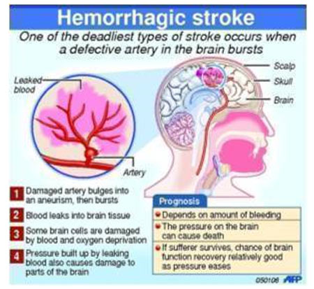 Stroke - Mortality Rate - Infographic