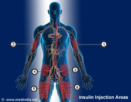 Insulin Injections For Diabetes
