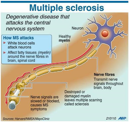 Multiple Sclerosis - New Drug - Infographic