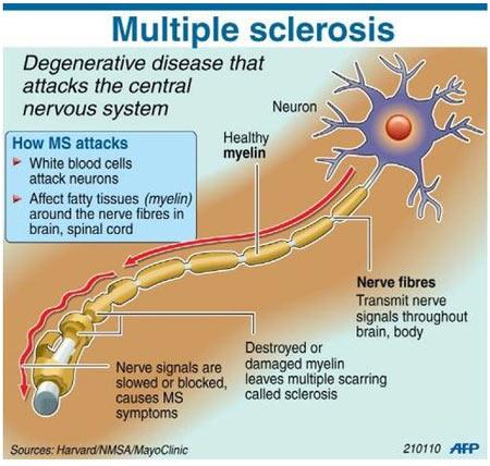 Multiple Sclerosis - New Drug