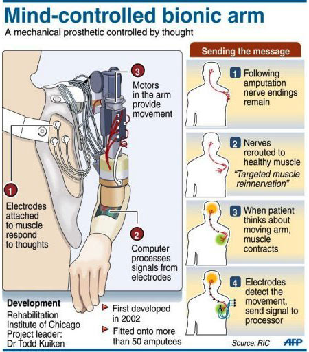 Prosthetic Limbs - Infographic