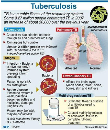 Infographics on Screening Tests for Tuberculosis
