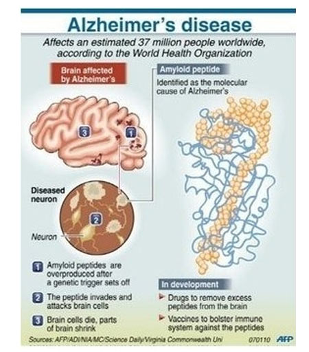 Infographics on Amnesia