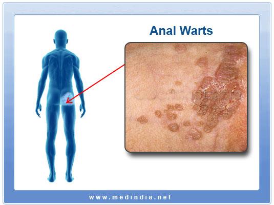 Anal Warts