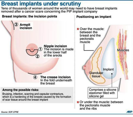 Breast Implants Under Scrutiny - Infographic