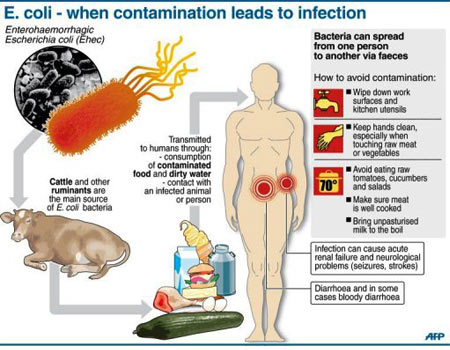 E.coli - Infection - Infographic
