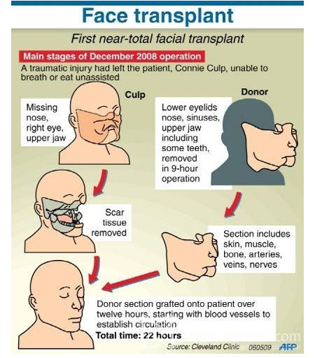 Face Transplant - Infographic