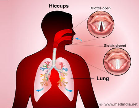 Hiccups - Infographic