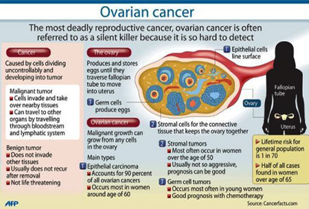 Infographic On Ovarian Cancer