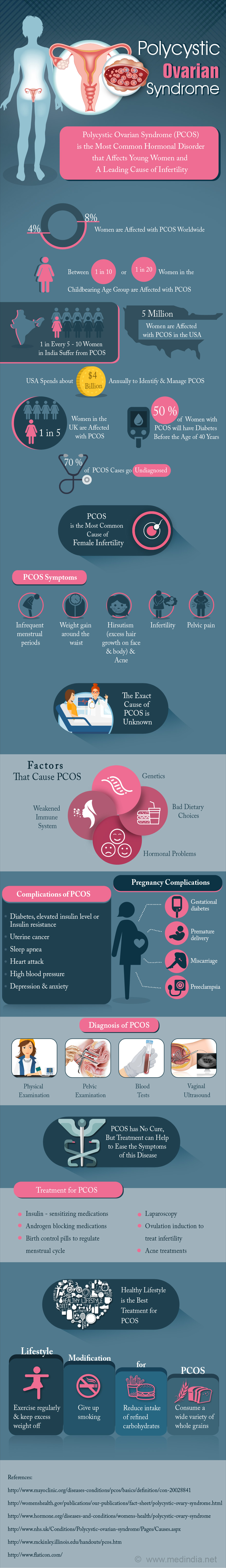 Polycystic Ovarian Syndrome - Infographic