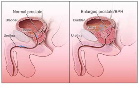 Prostate Gland Enlargement