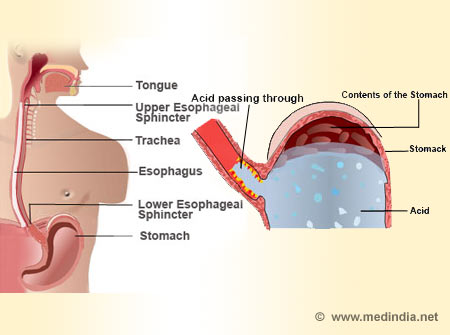 Gastroesophageal Reflux Disease - Infographic