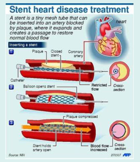 Coronary Stents - Infographic