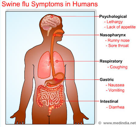 Swine Flu Symptoms In Humans