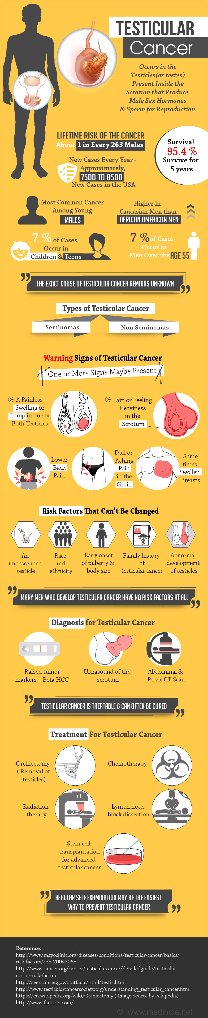 Testicular Cancer - Infographic