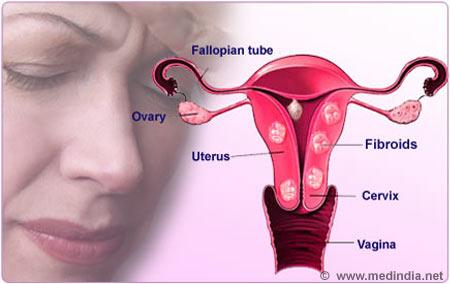 Fibroids In Uterus