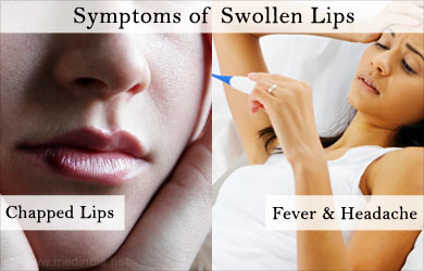 Lips home swollen remedies for Itchy Burning