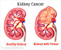 Top 15 Must Know Facts about Kidney Cancer