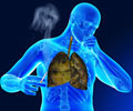 Interesting Facts and Statistics about Tuberculosis