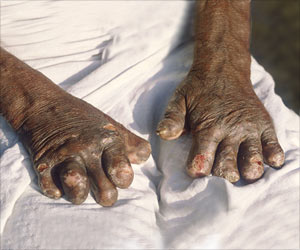 Top Facts On Leprosy
