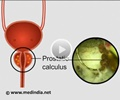 Prostatic Calculi