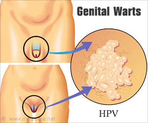 Genital wart on shaft