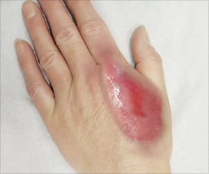 Do S And Don Ts Of Natural Treatments For Burns