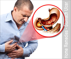 Home Remedies For Peptic Ulcer Stomach Ulcer