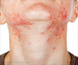 Oily skin rash for Fish oil rash