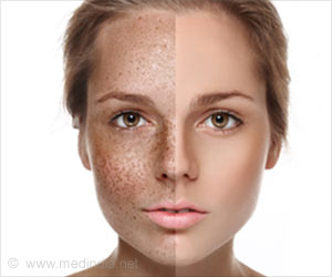 Image result for pigmentation