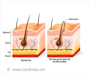 top 7 home remedies to get rid of ingrown hair