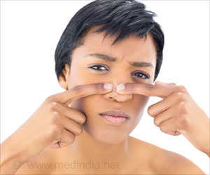top 12 home remedies for removal of whiteheads