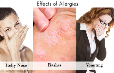 Effects of Allergies