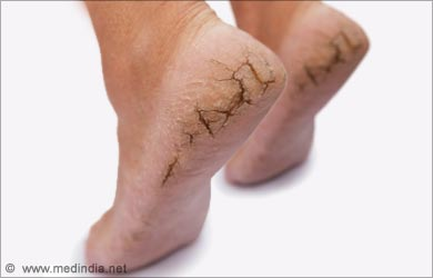 Dry Skin on the Feet